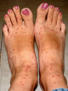 Kellemetlen allergia